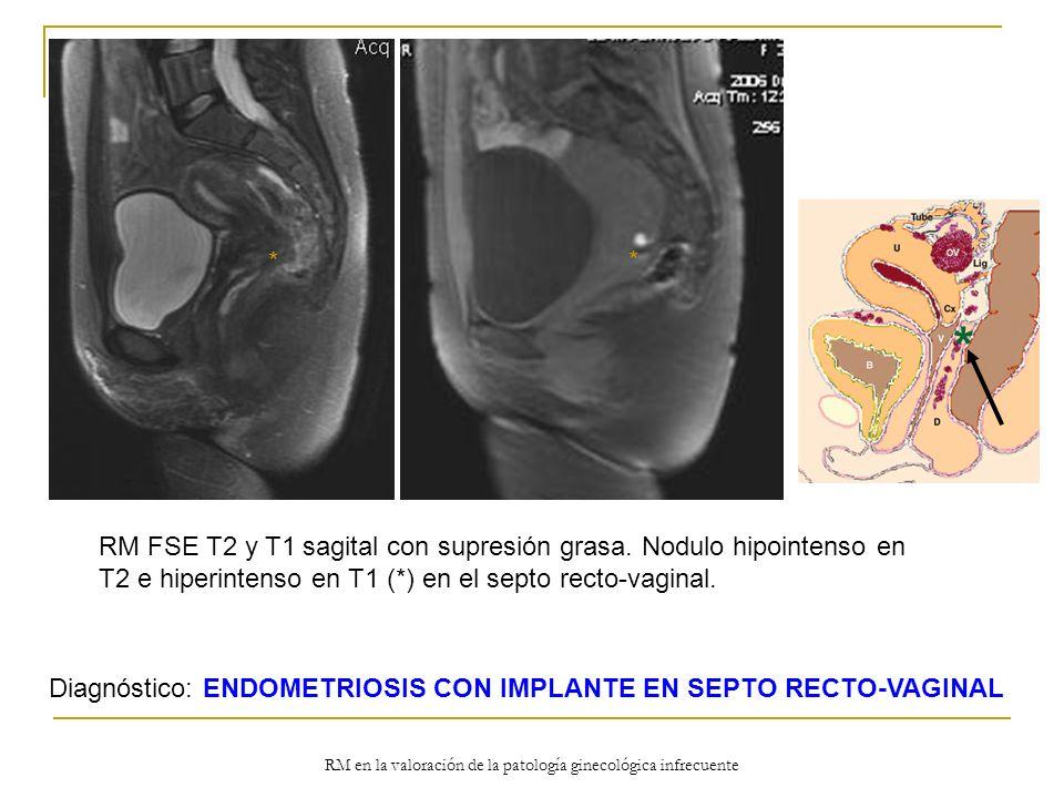 RM en la valoración de la patología ginecológica infrecuente RM FSE T2 y T1 sagital con supresión grasa. Nodulo hipointenso en T2 e hiperintenso en T1