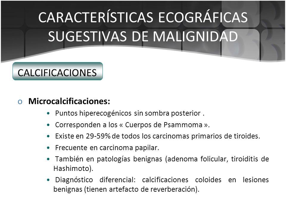 CARACTERÍSTICAS ECOGRÁFICAS SUGESTIVAS DE MALIGNIDAD CALCIFICACIONES oMicrocalcificaciones: Puntos hiperecogénicos sin sombra posterior. Corresponden