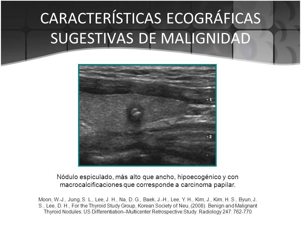 CARACTERÍSTICAS ECOGRÁFICAS SUGESTIVAS DE MALIGNIDAD Nódulo espiculado, más alto que ancho, hipoecogénico y con macrocalcificaciones que corresponde a