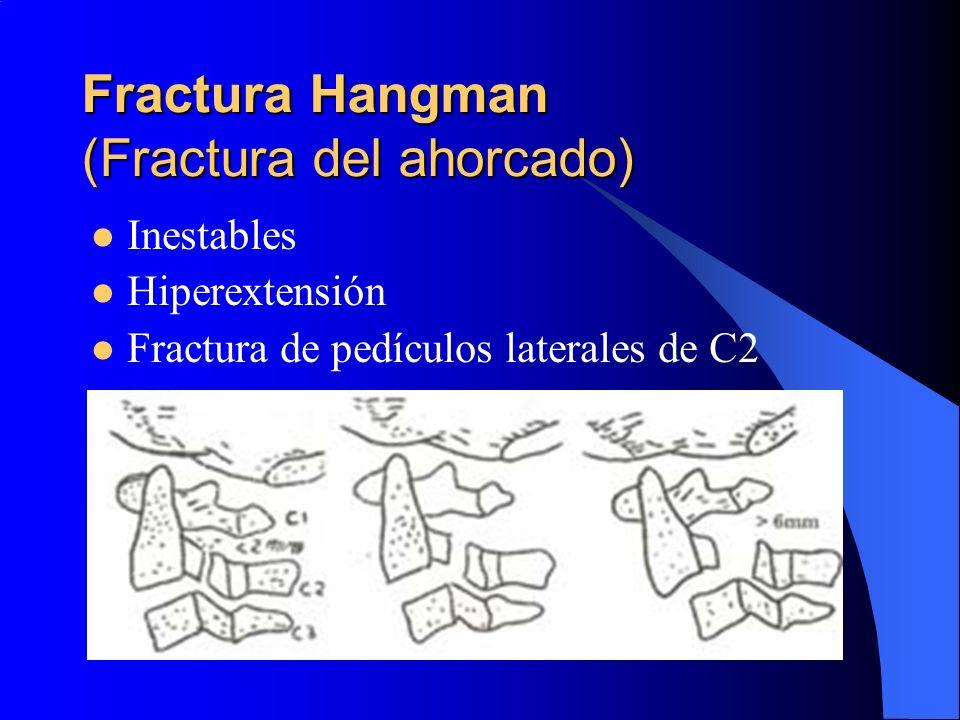 Fractura Hangman (Fractura del ahorcado) Inestables Hiperextensión Fractura de pedículos laterales de C2