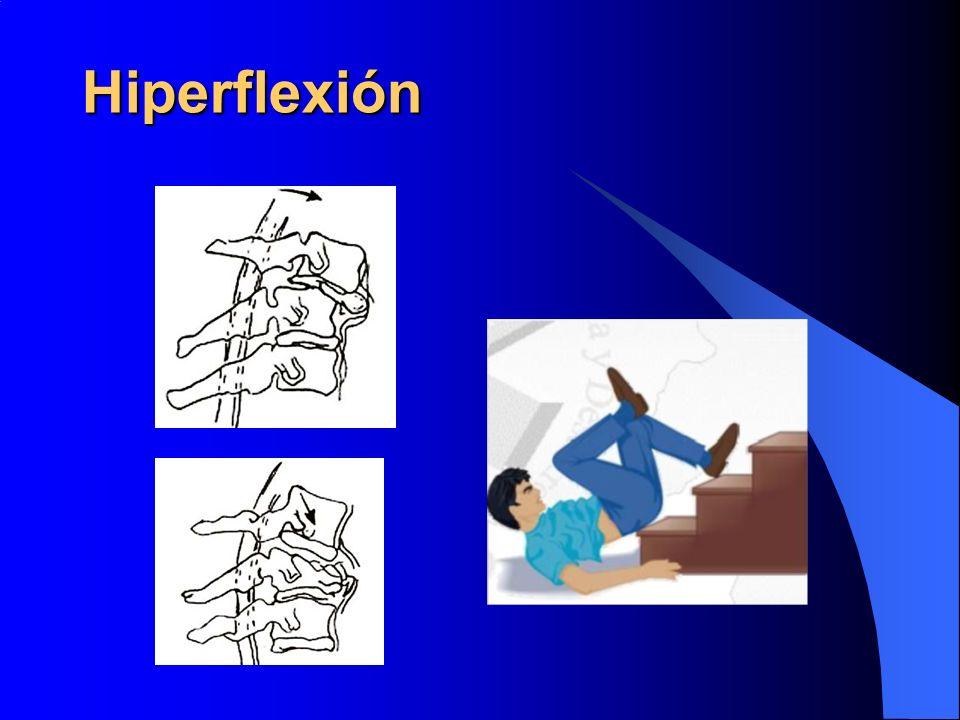 Hiperflexión
