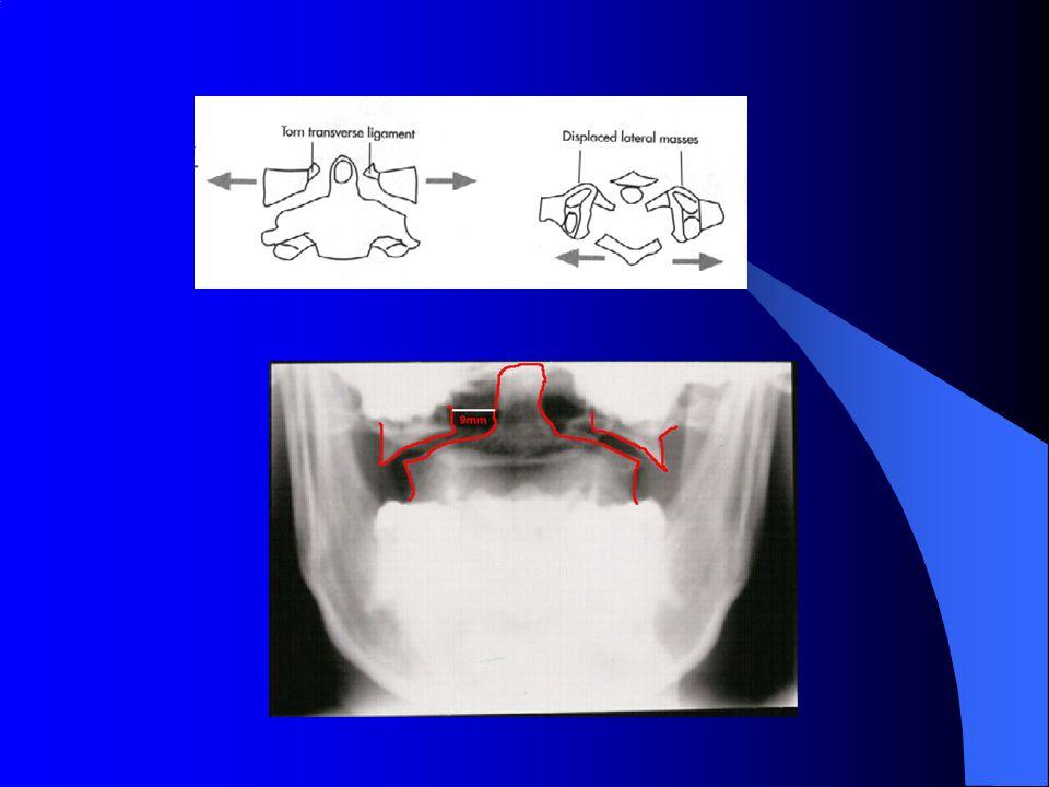 Fractura C2 Grandes traumatismos. 2 tipos: –Odontoides –Arco posterior (Hangman)