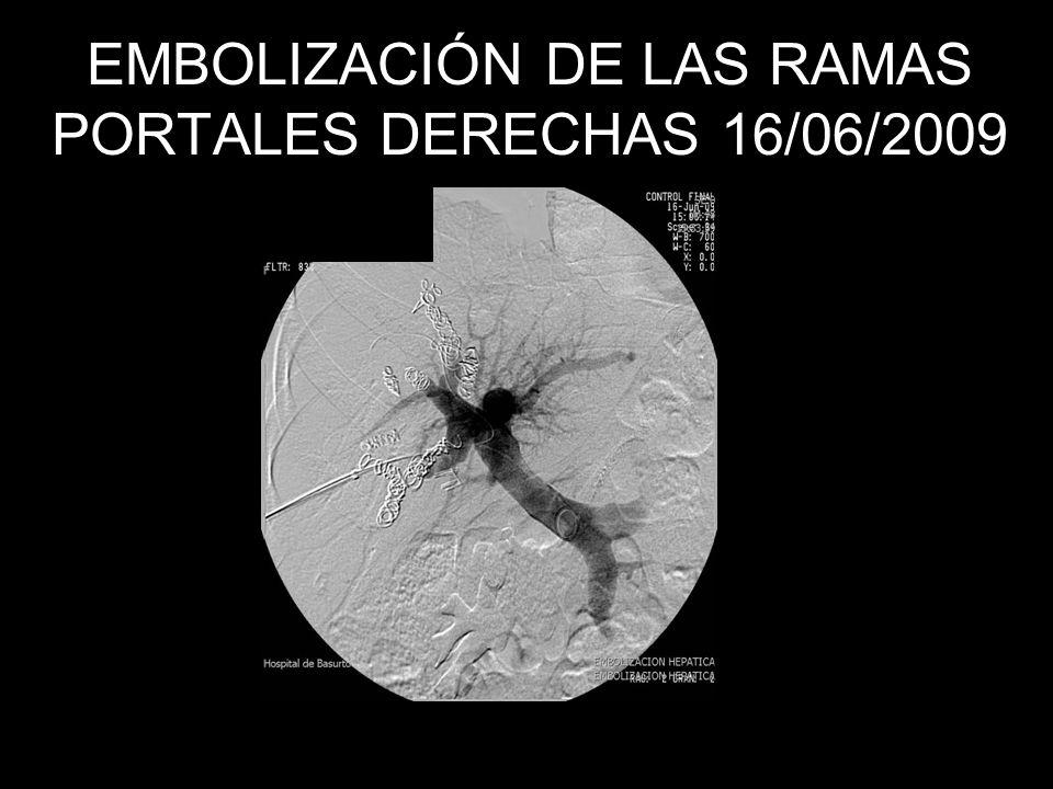 EMBOLIZACIÓN DE LAS RAMAS PORTALES DERECHAS 16/06/2009
