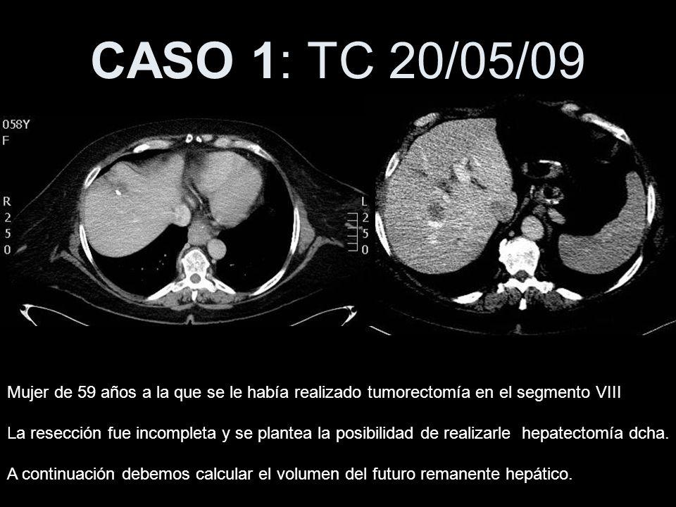 CASO 1: TC 20/05/09 Mujer de 59 años a la que se le había realizado tumorectomía en el segmento VIII La resección fue incompleta y se plantea la posib