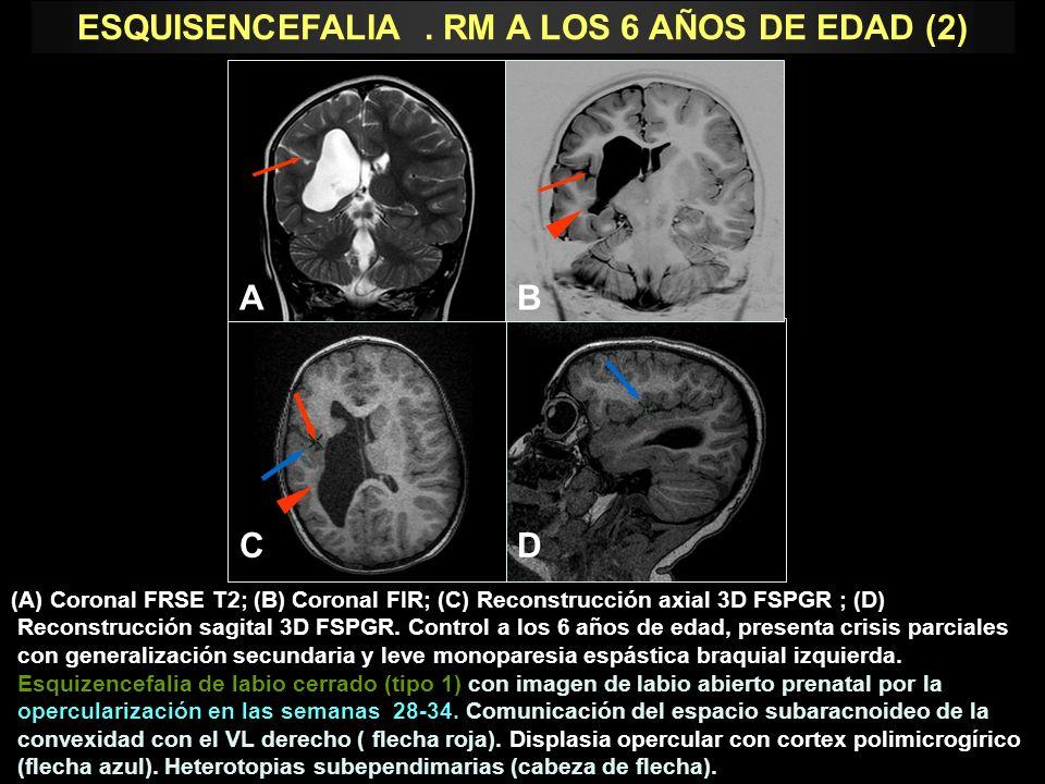 (A) Coronal FRSE T2; (B) Coronal FIR; (C) Reconstrucción axial 3D FSPGR ; (D) Reconstrucción sagital 3D FSPGR. Control a los 6 años de edad, presenta