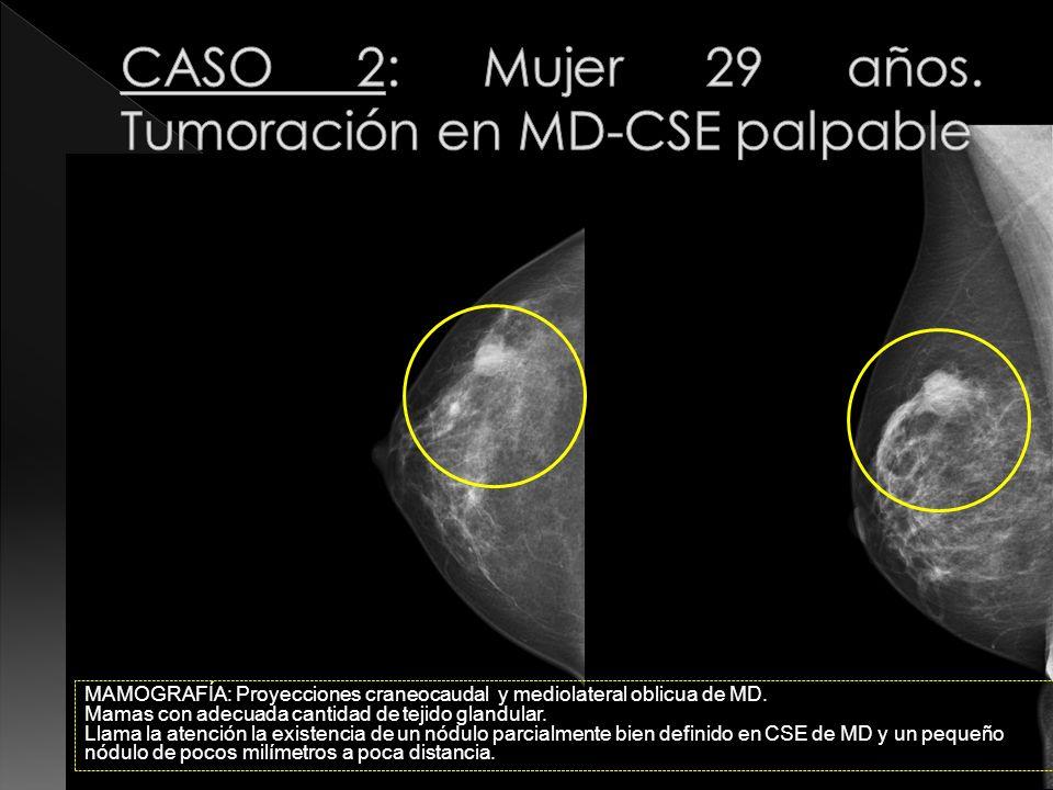 MAMOGRAFÍA: Proyecciones craneocaudal y mediolateral oblicua de MD. Mamas con adecuada cantidad de tejido glandular. Llama la atención la existencia d