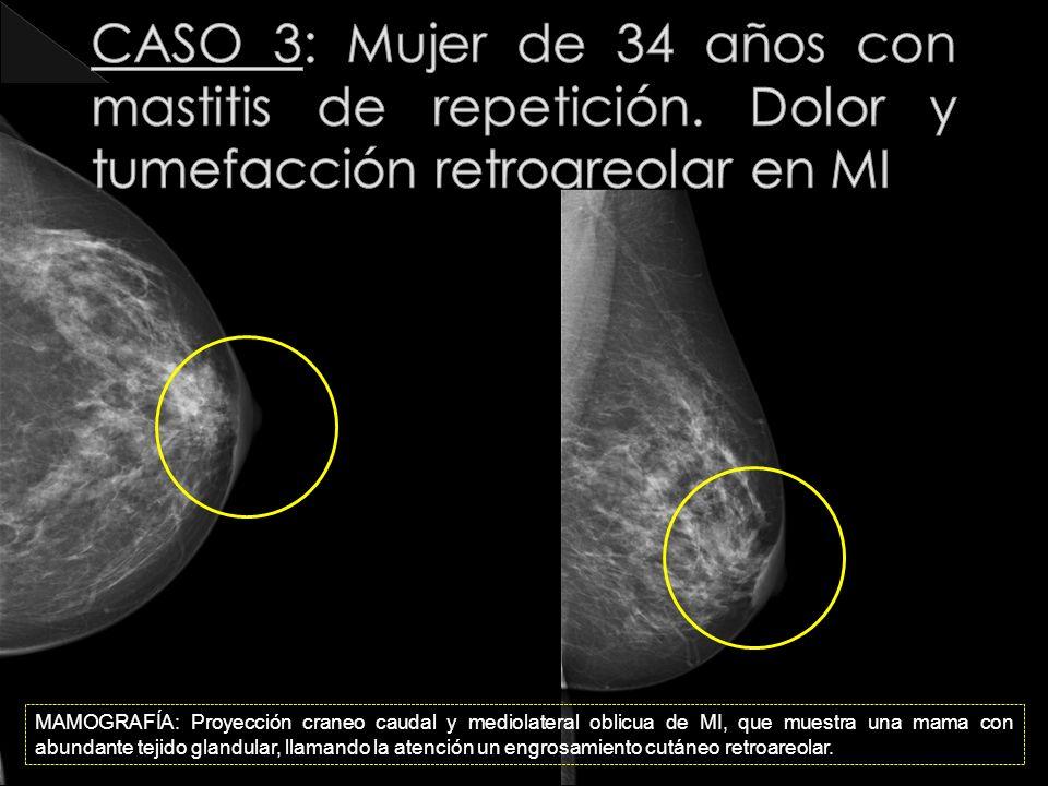 MAMOGRAFÍA: Proyección craneo caudal y mediolateral oblicua de MI, que muestra una mama con abundante tejido glandular, llamando la atención un engros