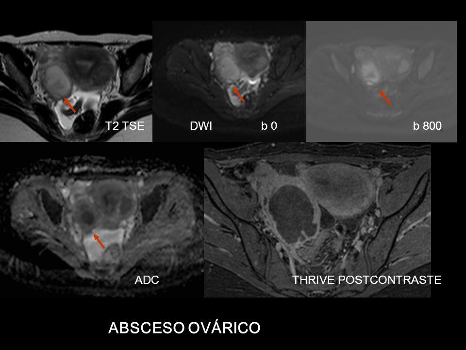 T2 TSE DWI b 0 b 800 ABSCESO OVÁRICO ADC THRIVE POSTCONTRASTE