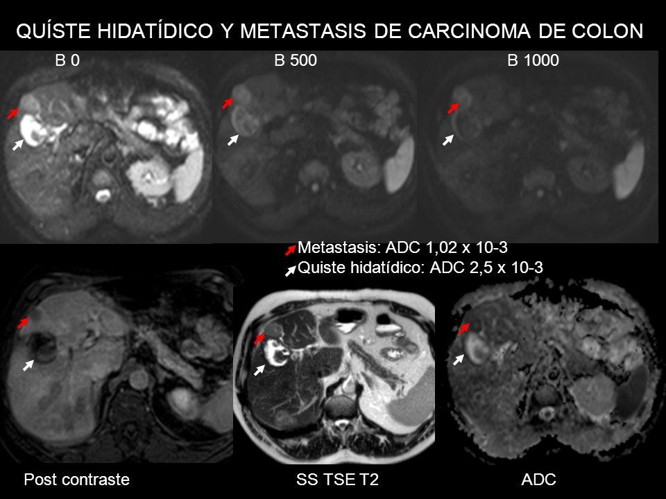 QUÍSTE HIDATÍDICO Y METASTASIS DE CARCINOMA DE COLON Post contraste SS TSE T2 ADC B 0 B 500 B 1000 Metastasis: ADC 1,02 x 10-3 Quiste hidatídico: ADC