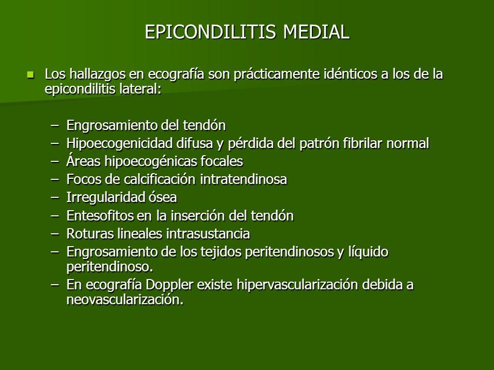 EPICONDILITIS INTERNA Fig.1 Fig.2 Fig.3Fig.4 Proyecciones longitudinales del tendón flexor común.