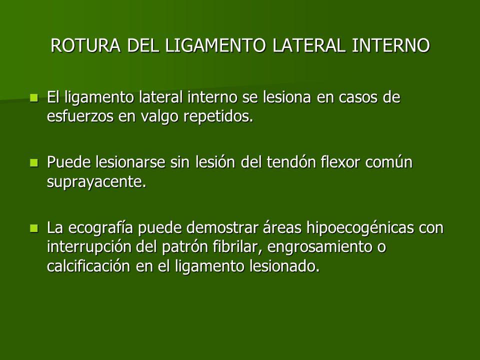 ROTURA DEL LIGAMENTO LATERAL INTERNO El ligamento lateral interno se lesiona en casos de esfuerzos en valgo repetidos. El ligamento lateral interno se