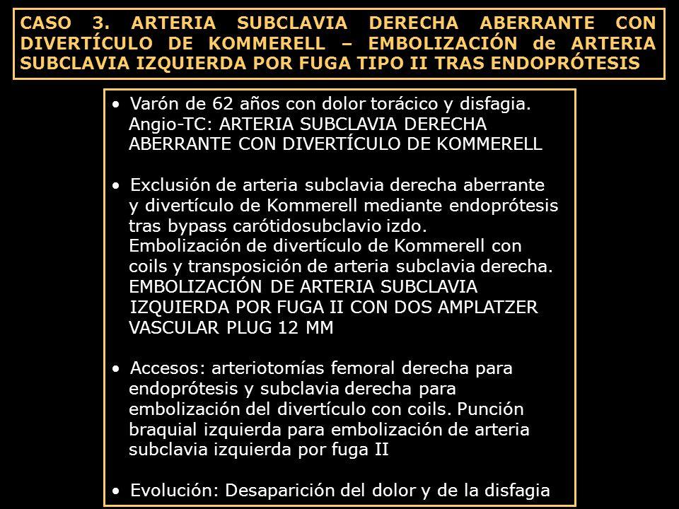 CASO 3. ARTERIA SUBCLAVIA DERECHA ABERRANTE CON DIVERTÍCULO DE KOMMERELL – EMBOLIZACIÓN de ARTERIA SUBCLAVIA IZQUIERDA POR FUGA TIPO II TRAS ENDOPRÓTE