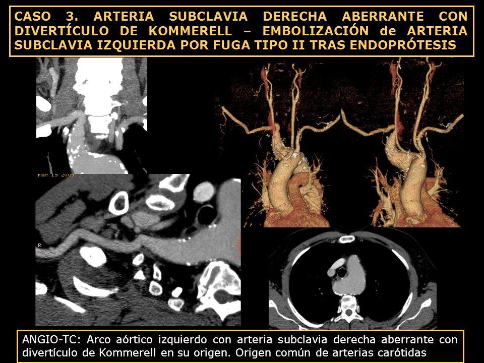 ANGIO-TC: Arco aórtico izquierdo con arteria subclavia derecha aberrante con divertículo de Kommerell en su origen. Origen común de arterias carótidas