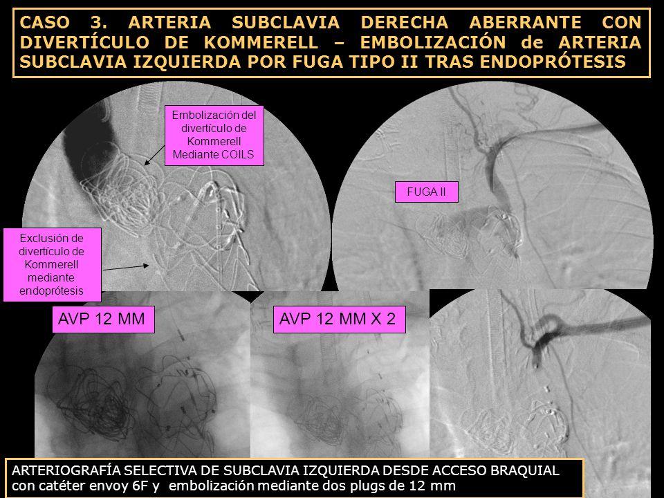 Embolización del divertículo de Kommerell Mediante COILS FUGA II AVP 12 MMAVP 12 MM X 2 ARTERIOGRAFÍA SELECTIVA DE SUBCLAVIA IZQUIERDA DESDE ACCESO BR