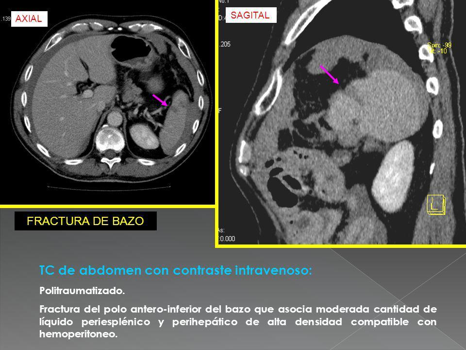 TC de abdomen con contraste intravenoso: Politraumatizado. Fractura del polo antero-inferior del bazo que asocia moderada cantidad de líquido periespl