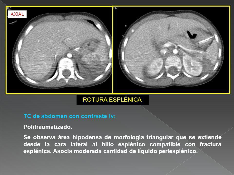 TC de abdomen con contraste iv: Politraumatizado. Se observa área hipodensa de morfología triangular que se extiende desde la cara lateral al hilio es