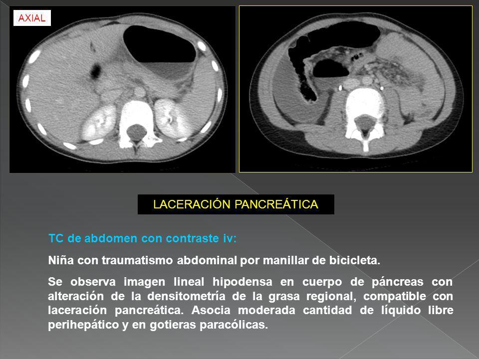 TC de abdomen con contraste iv: Niña con traumatismo abdominal por manillar de bicicleta. Se observa imagen lineal hipodensa en cuerpo de páncreas con
