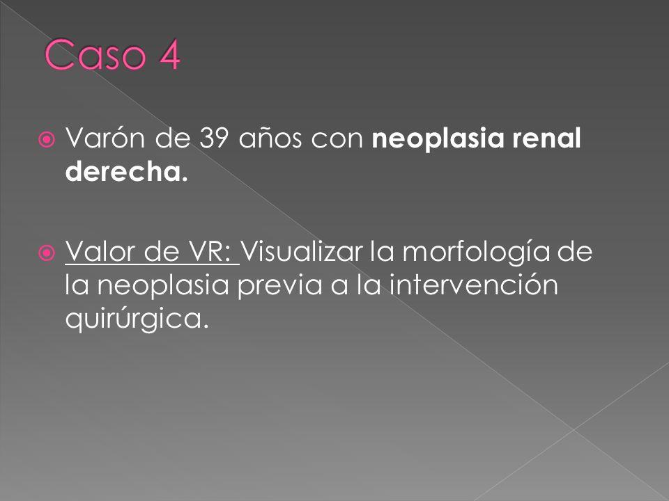 Varón de 39 años con neoplasia renal derecha. Valor de VR: Visualizar la morfología de la neoplasia previa a la intervención quirúrgica.