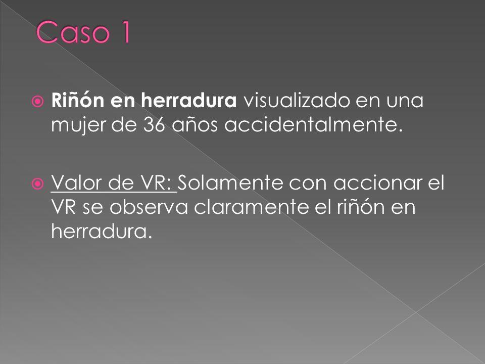 Riñón en herradura visualizado en una mujer de 36 años accidentalmente. Valor de VR: Solamente con accionar el VR se observa claramente el riñón en he