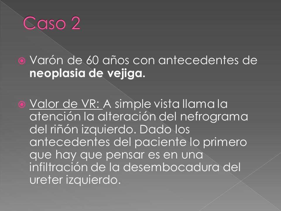 Varón de 60 años con antecedentes de neoplasia de vejiga. Valor de VR: A simple vista llama la atención la alteración del nefrograma del riñón izquier