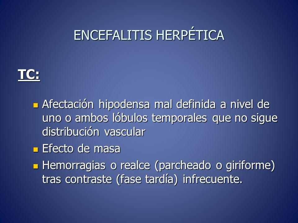 ENCEFALITIS HERPÉTICA TC: Afectación hipodensa mal definida a nivel de uno o ambos lóbulos temporales que no sigue distribución vascular Afectación hipodensa mal definida a nivel de uno o ambos lóbulos temporales que no sigue distribución vascular Efecto de masa Efecto de masa Hemorragias o realce (parcheado o giriforme) tras contraste (fase tardía) infrecuente.