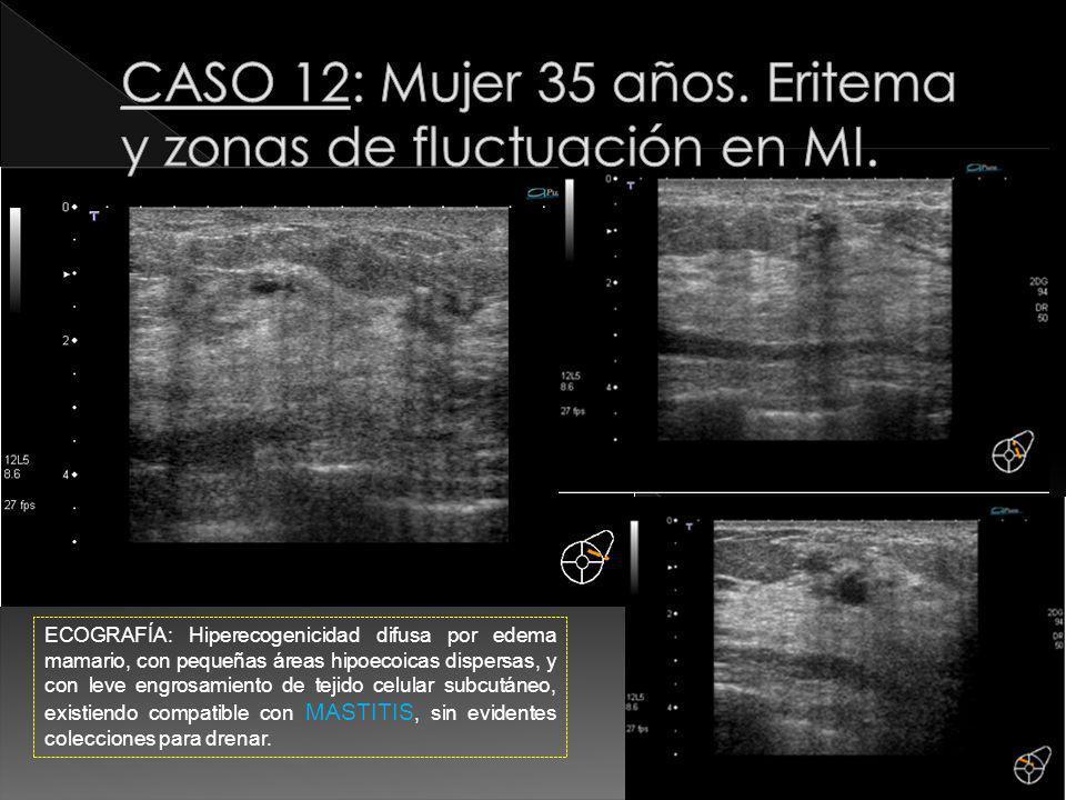 ECOGRAFÍA: Hiperecogenicidad difusa por edema mamario, con pequeñas áreas hipoecoicas dispersas, y con leve engrosamiento de tejido celular subcutáneo