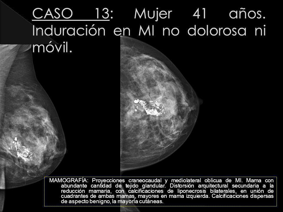 MAMOGRAFÍA: Proyecciones craneocaudal y mediolateral oblicua de MI. Mama con abundante cantidad de tejido glandular. Distorsión arquitectural secundar