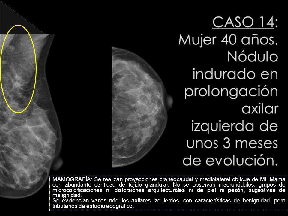 MAMOGRAFÍA: Se realizan proyecciones craneocaudal y mediolateral oblicua de MI. Mama con abundante cantidad de tejido glandular. No se observan macron