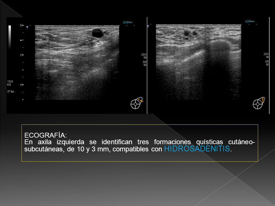 MAMOGRAFÍA: Proyecciones craneocaudal y mediolateral oblicua de MD.