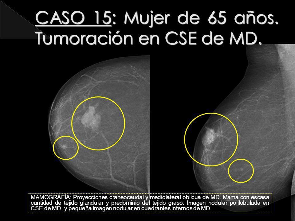 MAMOGRAFÍA: Proyecciones craneocaudal y mediolateral oblicua de MD. Mama con escasa cantidad de tejido glandular y predominio del tejido graso. Imagen