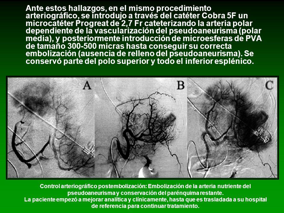Ante estos hallazgos, en el mismo procedimiento arteriográfico, se introdujo a través del catéter Cobra 5F un microcatéter Progreat de 2,7 Fr cateteri