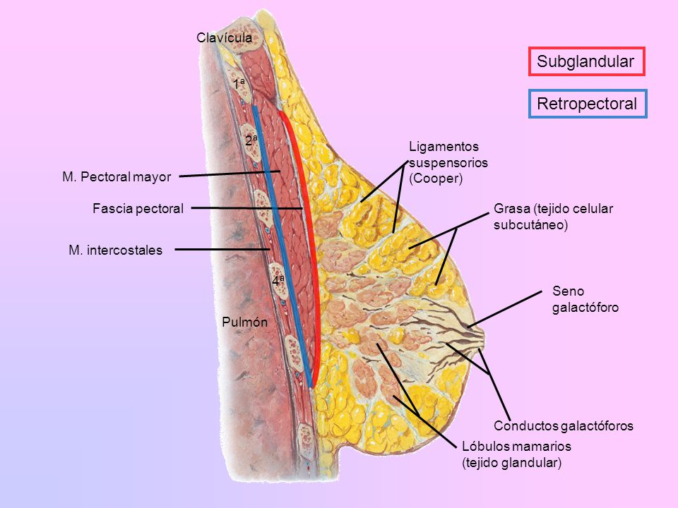 Prótesis mamarias Tipos de implante en la actualidad: –Gel de silicona.