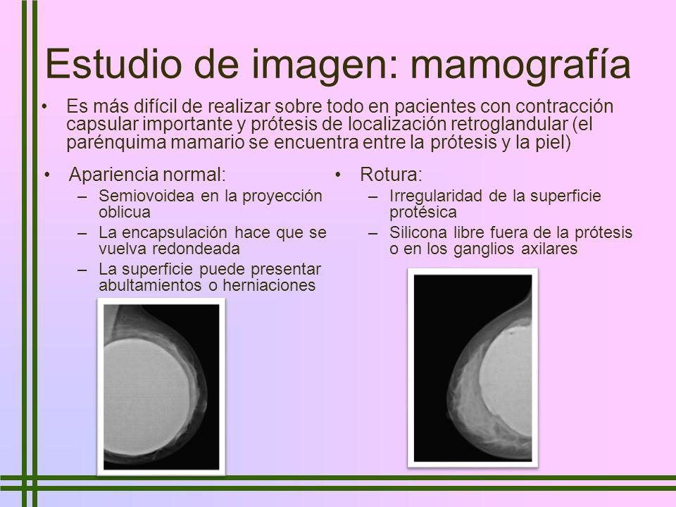 Estudio de imagen: mamografía Es más difícil de realizar sobre todo en pacientes con contracción capsular importante y prótesis de localización retrog