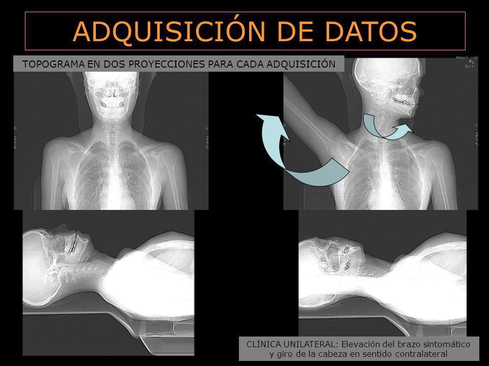 TOPOGRAMA EN DOS PROYECCIONES PARA CADA ADQUISICIÓN ADQUISICIÓN DE DATOS CLÍNICA UNILATERAL: Elevación del brazo sintomático y giro de la cabeza en se