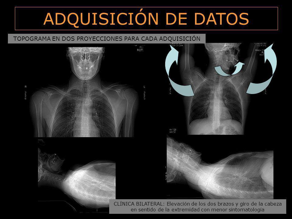 ADQUISICIÓN DE DATOS CLÍNICA BILATERAL: Elevación de los dos brazos y giro de la cabeza en sentido de la extremidad con menor sintomatología TOPOGRAMA