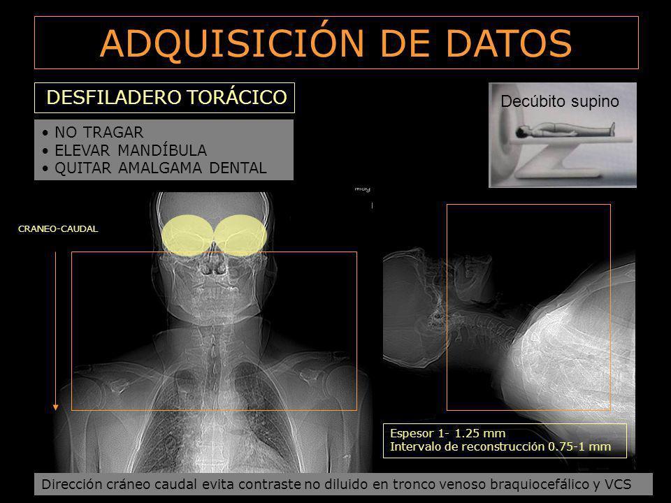 ADQUISICIÓN DE DATOS DESFILADERO TORÁCICO CRANEO-CAUDAL Decúbito supino NO TRAGAR ELEVAR MANDÍBULA QUITAR AMALGAMA DENTAL Dirección cráneo caudal evit