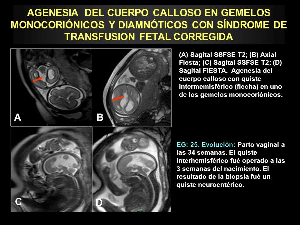 EG: 25. Evolución: Parto vaginal a las 34 semanas. El quiste interhemisférico fué operado a las 3 semanas del nacimiento. El resultado de la biopsia f