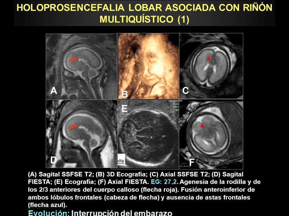 (A) Ecografía (B) Axial SSFSE T2.(C) Ecografía (D) Coronal FIESTA.
