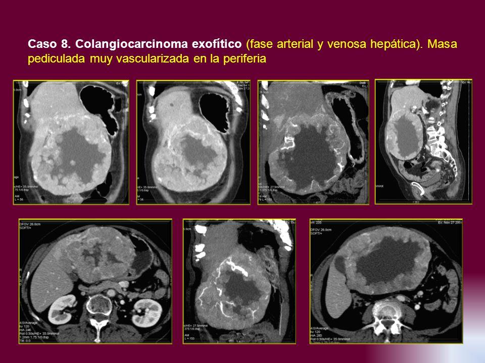 Caso 8. Colangiocarcinoma exofítico (fase arterial y venosa hepática). Masa pediculada muy vascularizada en la periferia