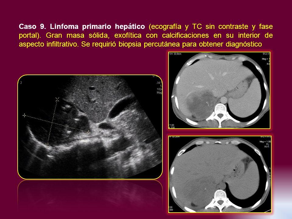 Caso 9. Linfoma primario hepático (ecografía y TC sin contraste y fase portal). Gran masa sólida, exofítica con calcificaciones en su interior de aspe