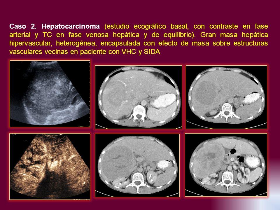 Caso 2. Hepatocarcinoma (estudio ecográfico basal, con contraste en fase arterial y TC en fase venosa hepática y de equilibrio). Gran masa hepática hi