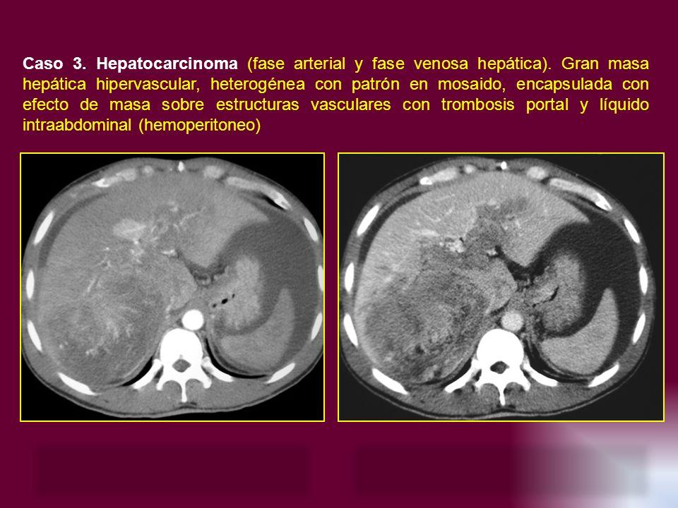 Caso 3. Hepatocarcinoma (fase arterial y fase venosa hepática). Gran masa hepática hipervascular, heterogénea con patrón en mosaido, encapsulada con e