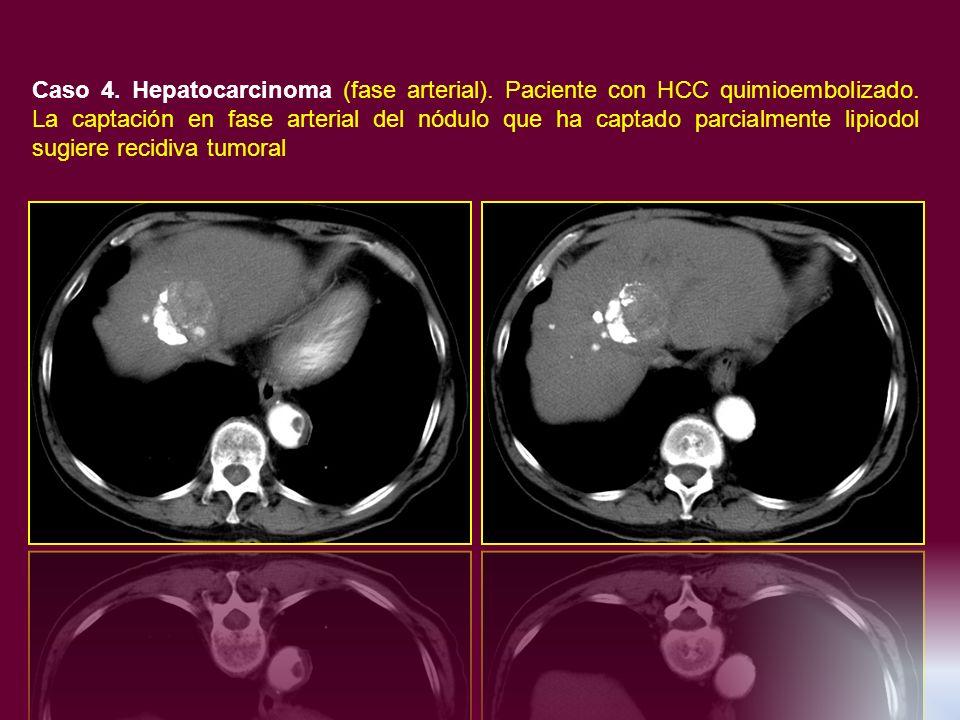 Caso 4. Hepatocarcinoma (fase arterial). Paciente con HCC quimioembolizado. La captación en fase arterial del nódulo que ha captado parcialmente lipio