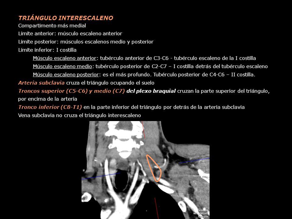 TRIÁNGULO INTERESCALENO Compartimento más medial Límite anterior: músculo escaleno anterior Límite posterior: músculos escalenos medio y posterior Lím