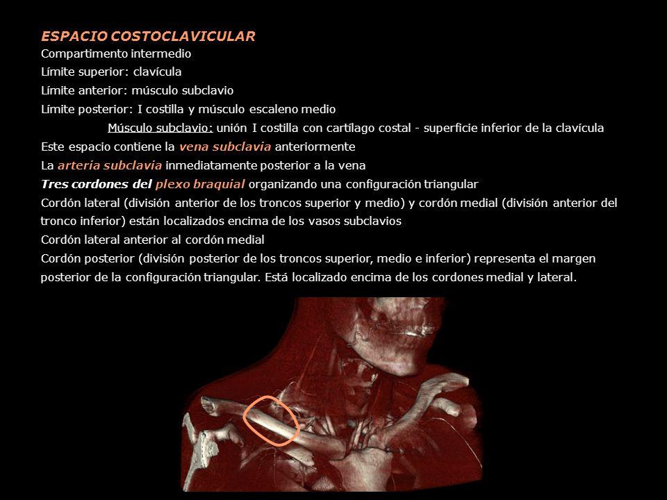 ESPACIO COSTOCLAVICULAR Compartimento intermedio Límite superior: clavícula Límite anterior: músculo subclavio Límite posterior: I costilla y músculo