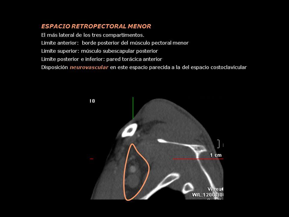 ESPACIO RETROPECTORAL MENOR El más lateral de los tres compartimentos. Límite anterior: borde posterior del músculo pectoral menor Límite superior: mú