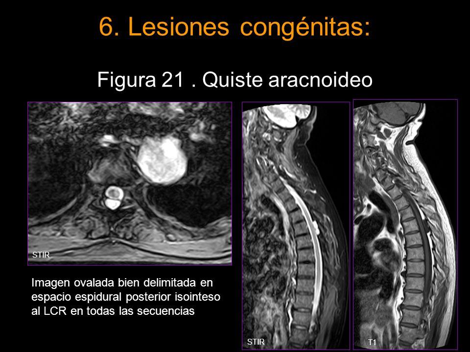 6. Lesiones congénitas: Figura 21. Quiste aracnoideo Imagen ovalada bien delimitada en espacio espidural posterior isointeso al LCR en todas las secue