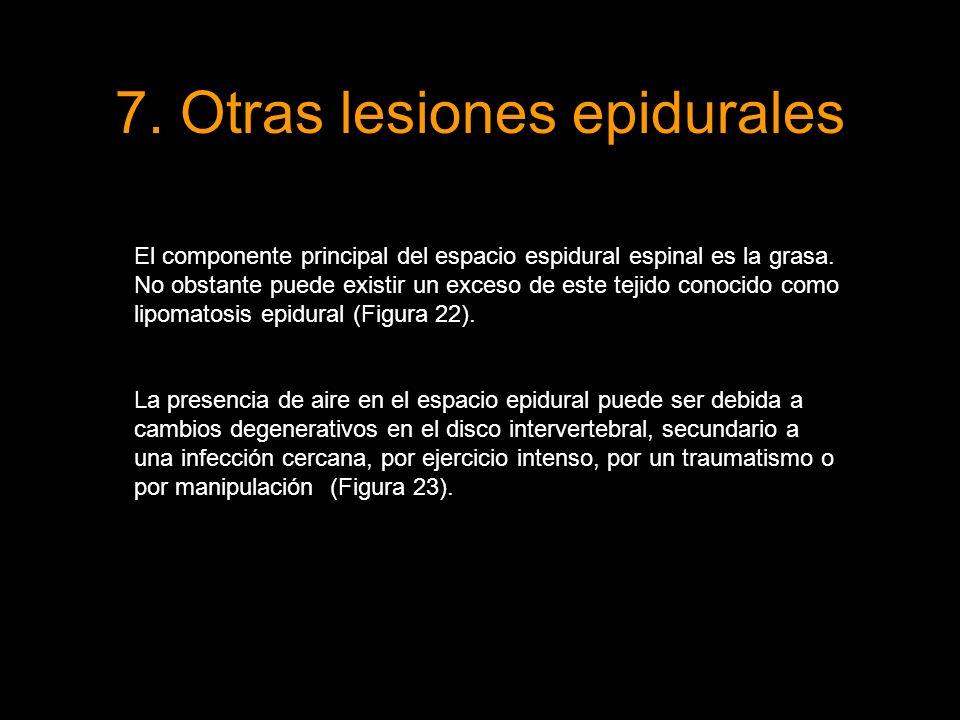 7. Otras lesiones epidurales El componente principal del espacio espidural espinal es la grasa. No obstante puede existir un exceso de este tejido con