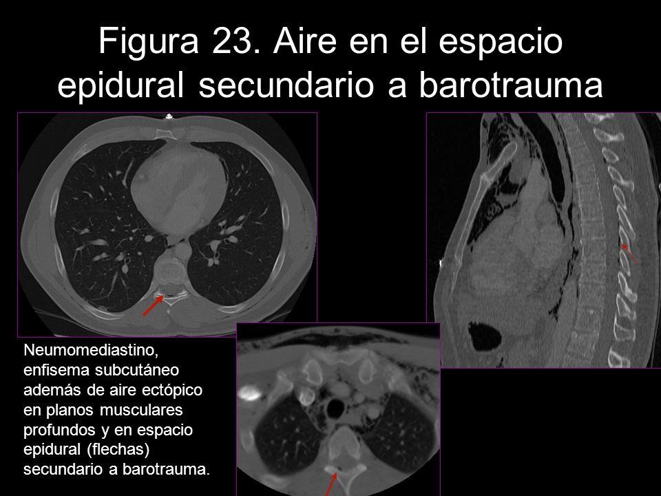 Figura 23. Aire en el espacio epidural secundario a barotrauma Neumomediastino, enfisema subcutáneo además de aire ectópico en planos musculares profu