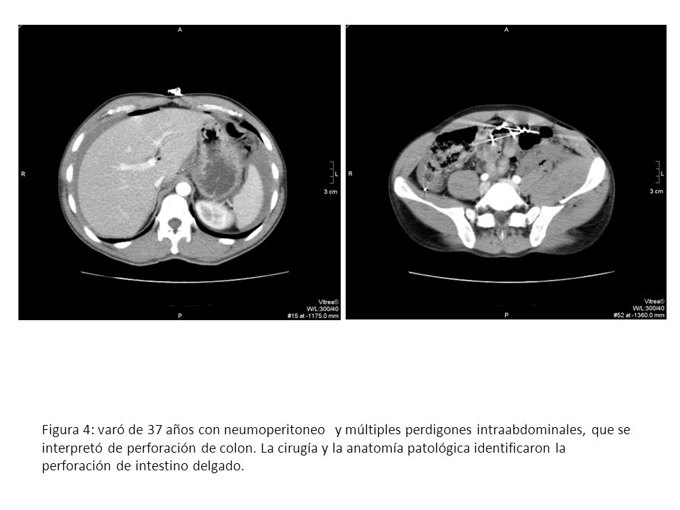 Figura 4: varó de 37 años con neumoperitoneo y múltiples perdigones intraabdominales, que se interpretó de perforación de colon. La cirugía y la anato